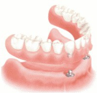 Which Overdenture Attachment System?